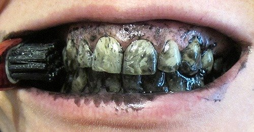Se laver les dents au charbon