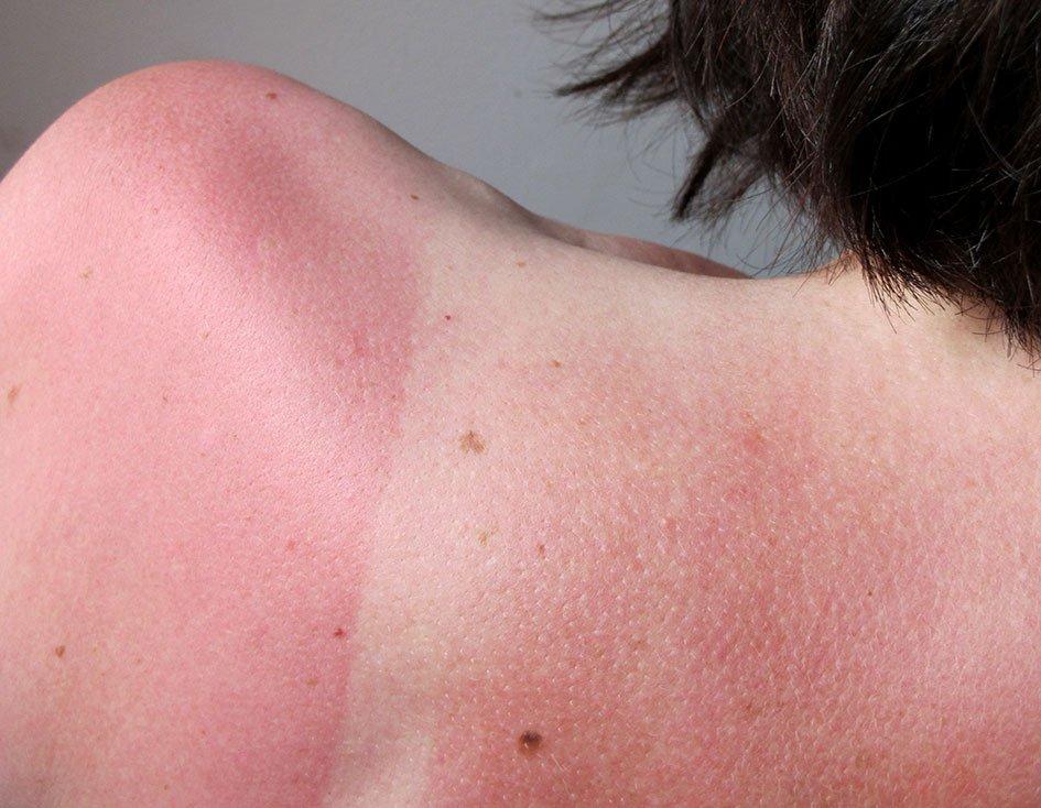 Comment soigner un coup de soleil naturellement paillettes et citron vert - Coup de soleil jambes gonflees ...