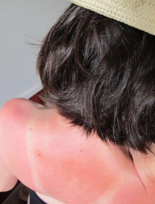 Coup de soleil dans le dos